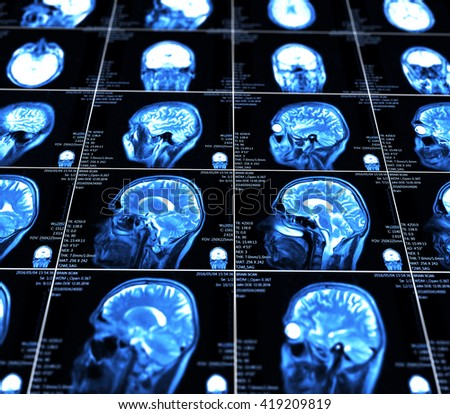 Magnetic resonance imaging of the brain  - stock photo