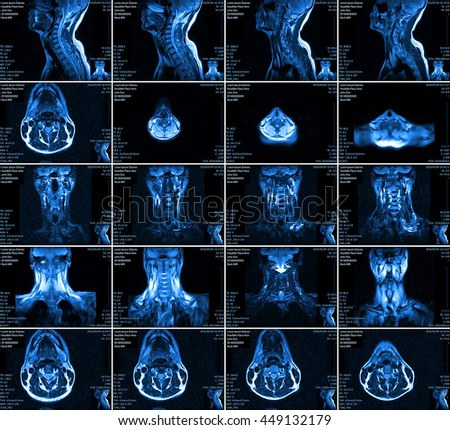 Magnetic resonance imaging of the cervical spine. - stock photo