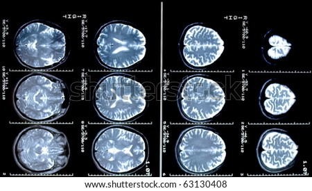 magnetic resonance (MR) scan brain and skull