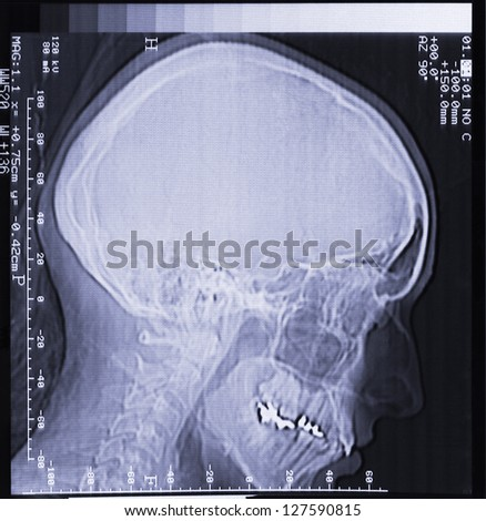 magnetic resonance (MR) scan of brain, skull, head, neck and face - stock photo