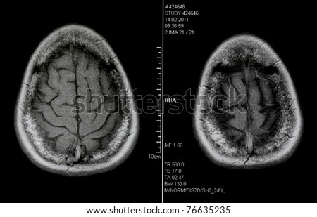 magnetic resonance tomography - stock photo