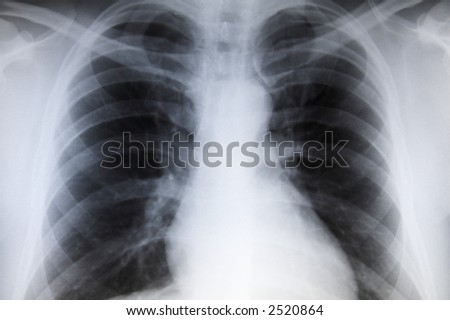 Male chest x-ray