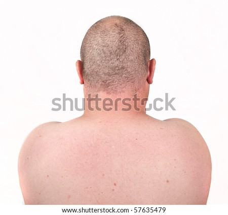 male close up picture of back and shaved thinning hair - stock photo