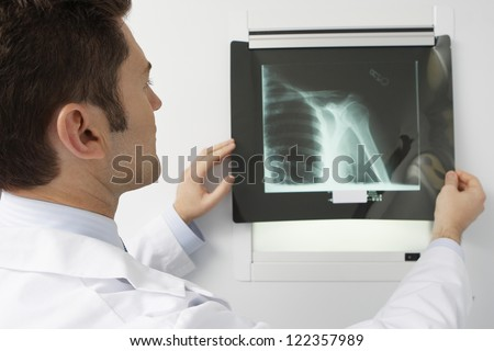 Male doctor analyzing x-ray image in hospital - stock photo