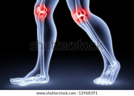 male feet under the X-rays. knee joints are highlighted in red. - stock photo
