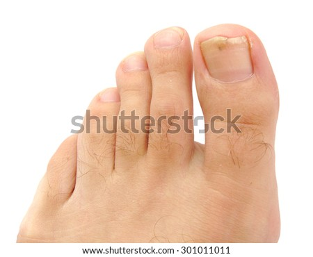 Male foot and toes with damaged nail isolated on white background - stock photo