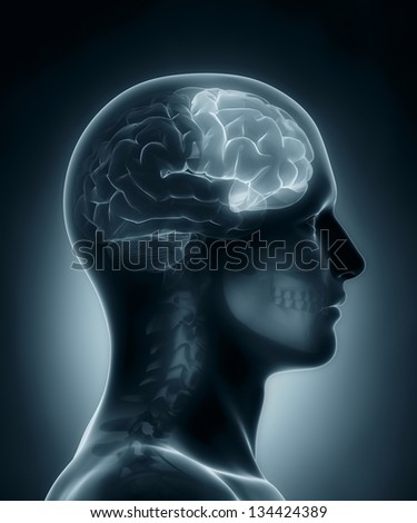 Male Frontal lobe medical x-ray scan - stock photo