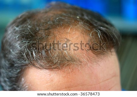 Male head with hair loss symptoms front side - stock photo