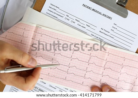 Male medicine doctor hands hold and show to patient cardiogram chart on clipboard pad. Cardio therapeutist assistance, physician make cardiac physical, heart rate measure document, arrhythmia concept - stock photo