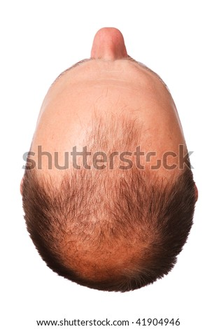 Male pattern baldness - stock photo