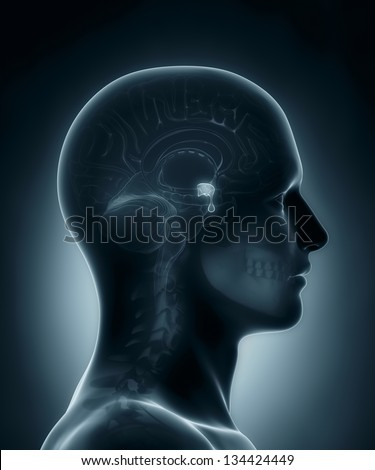 Male Pituitary gland medical x-ray scan - stock photo