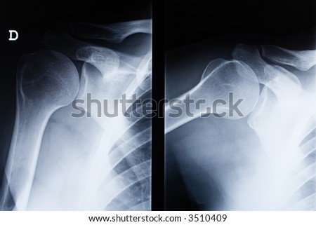 Shoulder Xray Stock Images, Royalty-Free Images & Vectors ...