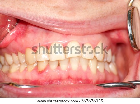 Malocclusion. Curvature of the upper dentition. Image close-up - stock photo