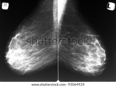 Mammogram films of both breasts of a female patient - stock photo