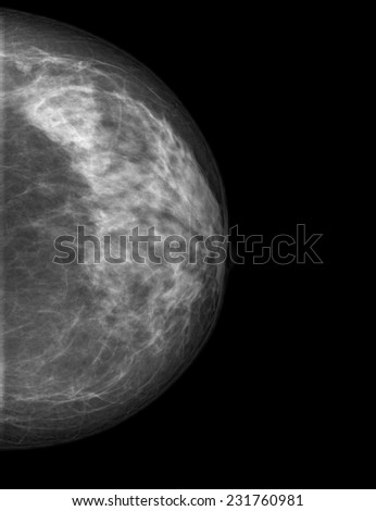 Mammogram films of breasts of a female patient - stock photo