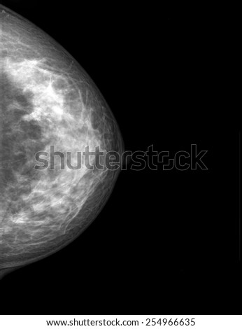 Mammogram radio imaging for breast cancer diagnosis - stock photo