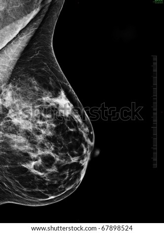 Mammography - stock photo
