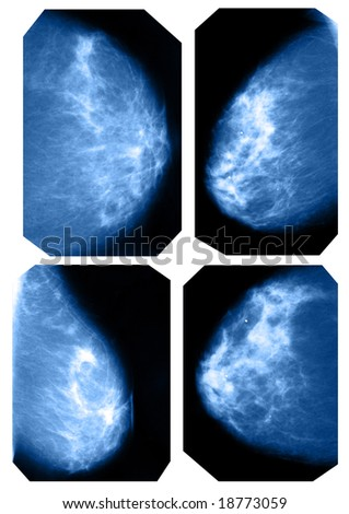 mammography collection - stock photo