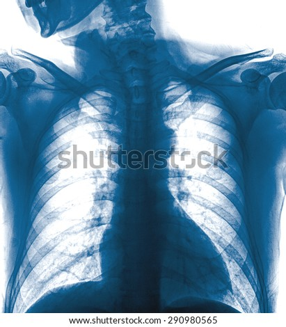 mammography x-ray picture ,isolated on white background - stock photo