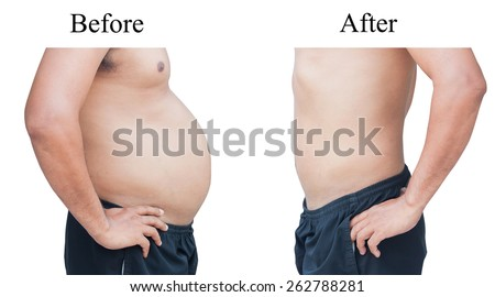 man before and after fat loss. - stock photo