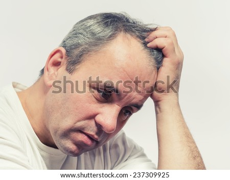 Man having headache - stock photo