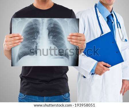Man holding a radiography of his lungs - stock photo