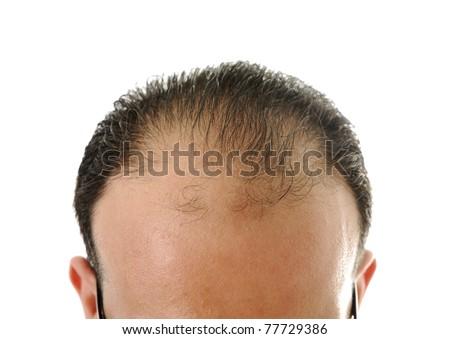 Man loosing hair, baldness - stock photo