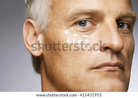 Man marked with lines for plastic surgery - stock photo