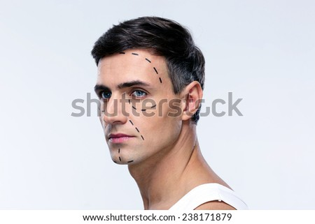 Man marked with lines for plastic surgery looking away - stock photo