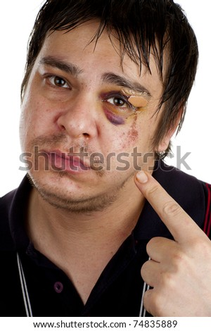 man pointing at his black eye, isolated on white back ground - stock photo