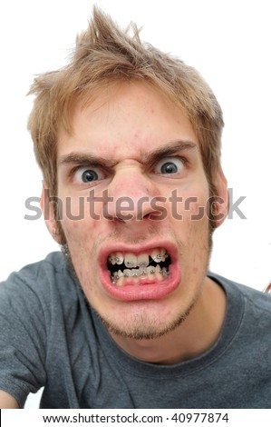 Man showing his braces isolated on white - stock photo