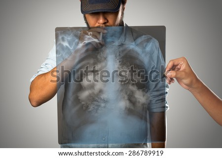 Man smoking with x-ray lung, Isolated on grey background - stock photo