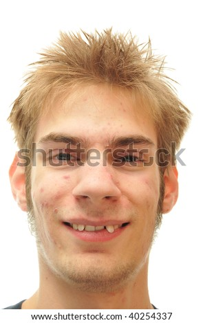Man trying to smile with crooked teeth isolated on white - stock photo