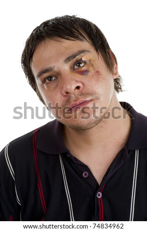 man with a black eye, isolated on white background - stock photo