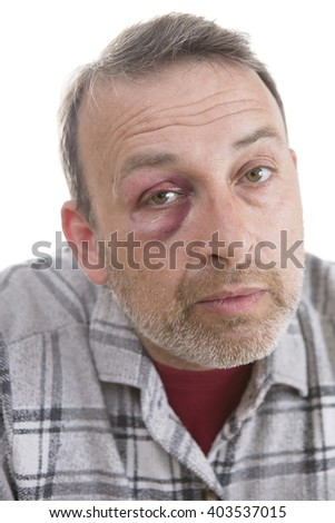 Man with Black Eye, Shiner. Man's face after the fight and assault. Middle-aged Caucasian male Emotional Portrait with a Real Bruise after the fight. Bully and Teaser. HiddenViolence.