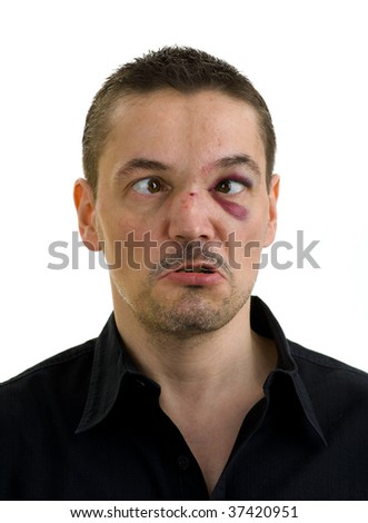 man with broken, crooked nose and black, crossed eyes, isolated on white