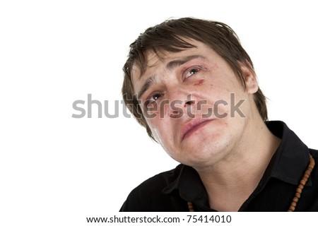 man with eye injury crying, isolated on white background - stock photo