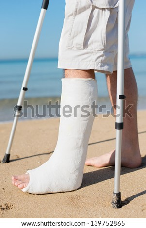 Man with leg plaster at a beach trying to walk - stock photo