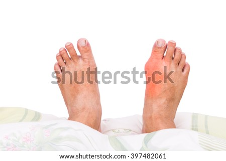 first gout attack ankle what foods have uric acid in it medicines to treat gout