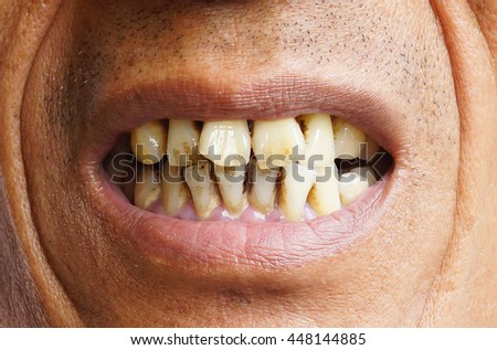 Dirty Teeth Stock Photos, Images, & Pictures | Shutterstock