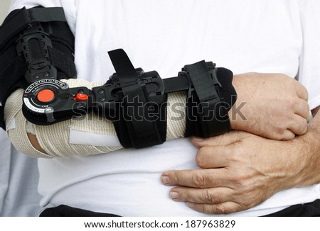 Mans broken arm with bandage and flexible support-modern hospital equipment - stock photo