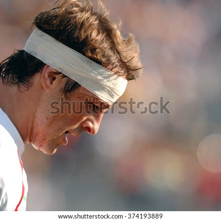MARSEILLE, FRANCE-OCTOBER 06, 2007: england rugby player with head injury during the World Cup match Australia vs England, in Marseille.
