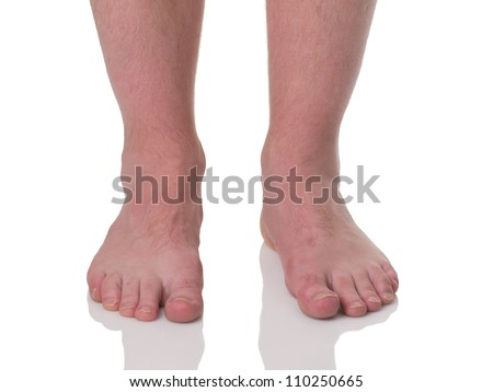 Mature man barefoot with dry skin and nails front view isolated on white background