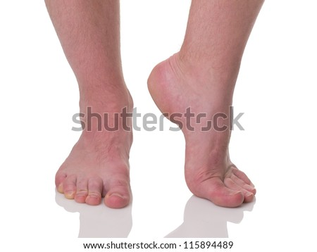Mature man barefoot with dry skin and nails side view isolated on white background - stock photo