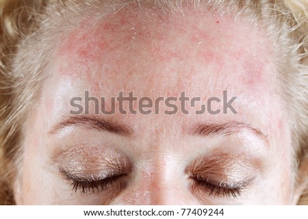 Mature woman's very dry & peeling skin - stock photo