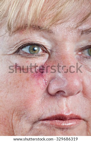 Mature woman with scar and spitting suture one week after Mohs surgery for Basal Cell Carcinoma - closeup - stock photo