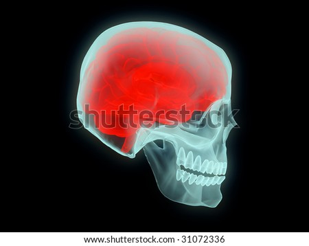 medical concept of isolated x-ray brain in the skull - stock photo