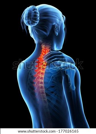 medical 3d illustration - woman having a painful neck - stock photo