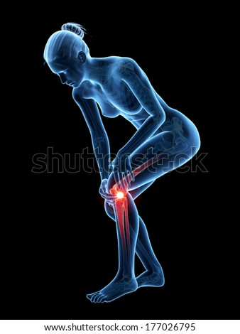 medical 3d illustration - woman having pain in the knee - stock photo