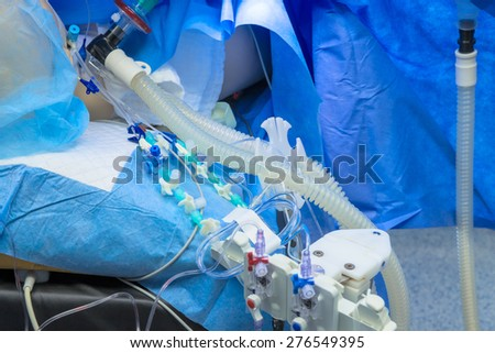 Medical device in cardiology clinic, anesthesia. - stock photo